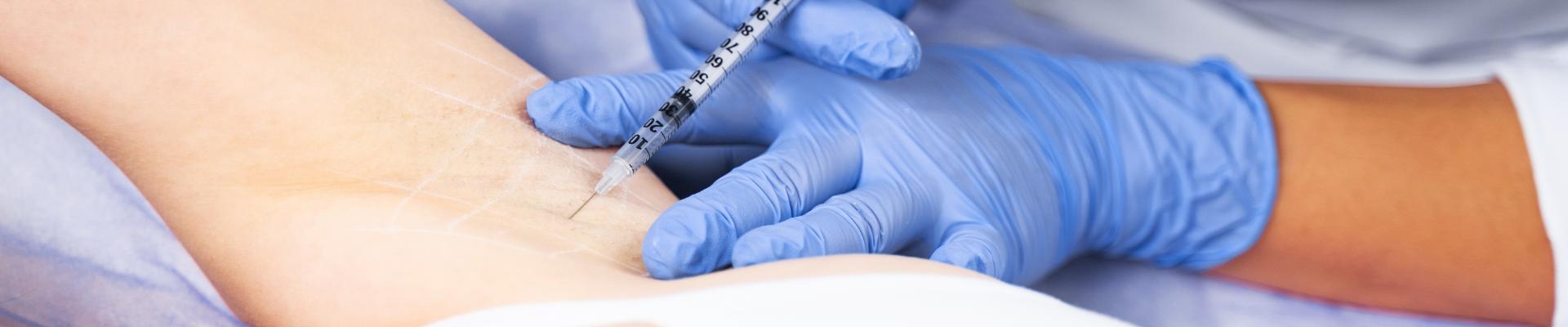 Hyperhidrose Behandlung mit Botox